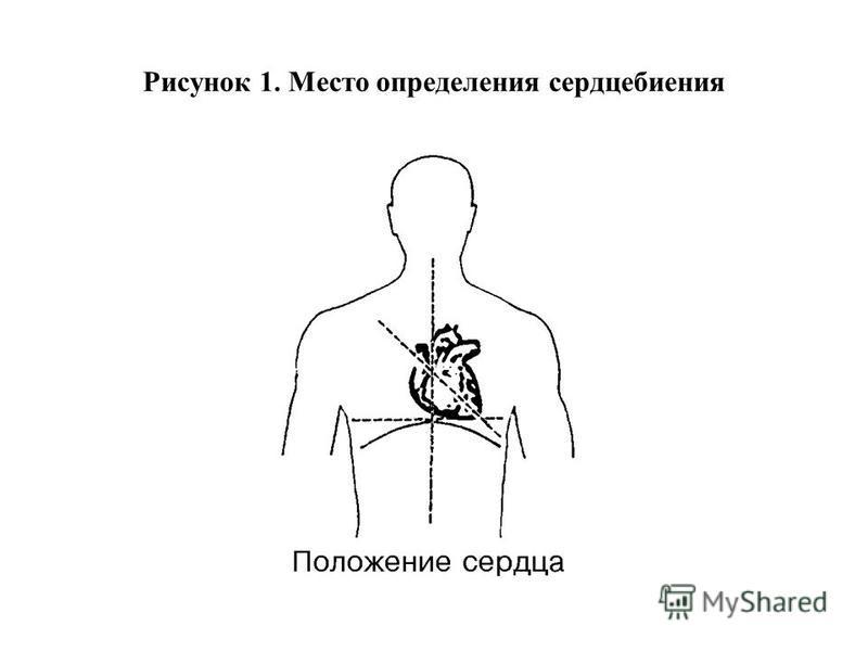 Рисунок 1. Место определения сердцебиения