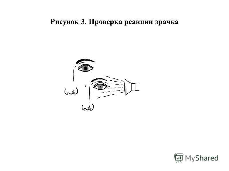 Рисунок 3. Проверка реакции зрачка
