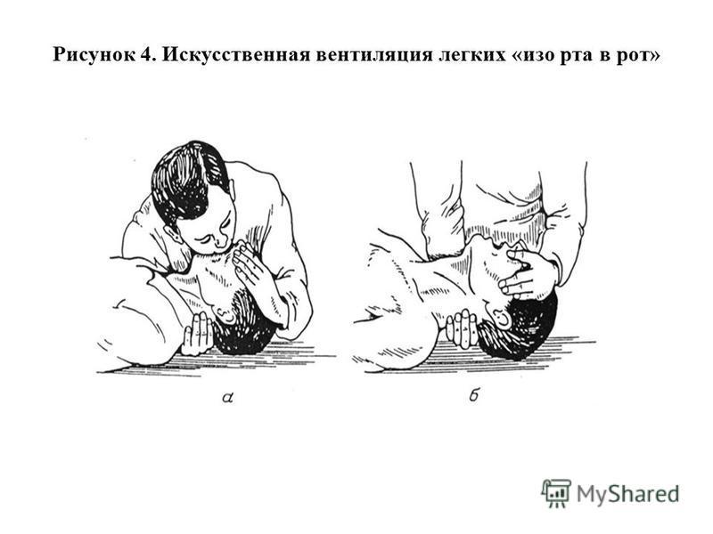 Рисунок 4. Искусственная вентиляция легких «изо рта в рот»