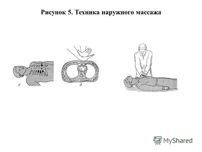 Рисунок 5. Техника наружного массажа
