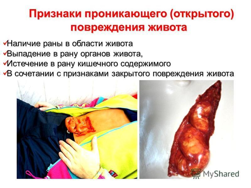 Наличие раны в области живота Наличие раны в области живота Выпадение в рану органов живота, Выпадение в рану органов живота, Истечение в рану кишечного содержимого Истечение в рану кишечного содержимого В сочетании с признаками закрытого повреждения