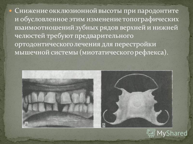 Снижение окклюзионной высоты при пародонтите и обусловленное этим изменение топографических взаимоотношений зубных рядов верхней и нижней челюстей требуют предварительного ортодонтического лечения для перестройки мышечной системы (миотатического рефл