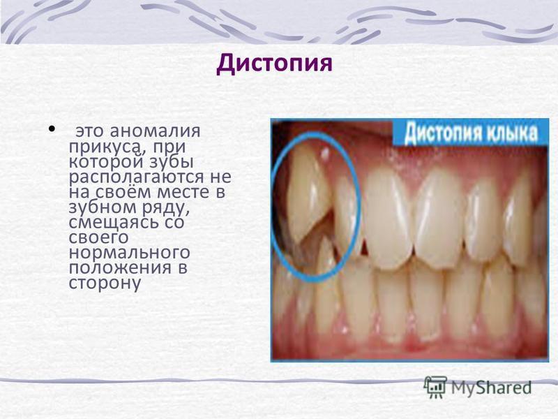 Дистопия это аномалия прикуса, при которой зубы располагаются не на своём месте в зубном ряду, смещаясь со своего нормального положения в сторону