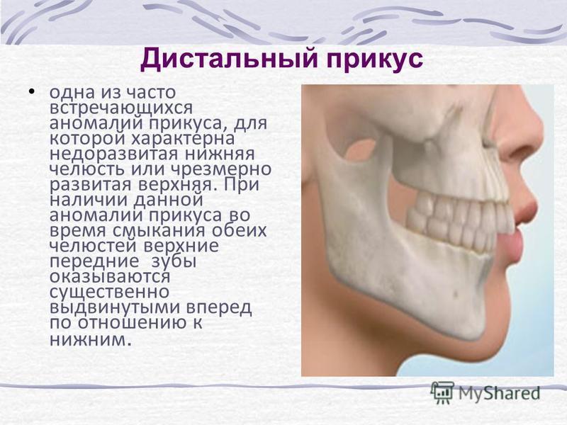 Дистальный прикус одна из часто встречающихся аномалий прикуса, для которой характерна недоразвитая нижняя челюсть или чрезмерно развитая верхняя. При наличии данной аномалии прикуса во время смыкания обеих челюстей верхние передние зубы оказываются