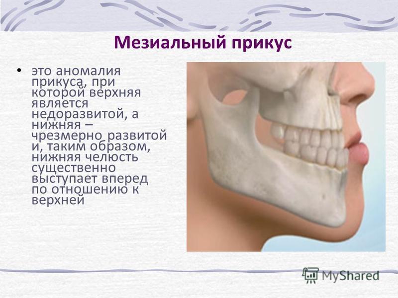 Мезиальный прикус это аномалия прикуса, при которой верхняя является недоразвитой, а нижняя – чрезмерно развитой и, таким образом, нижняя челюсть существенно выступает вперед по отношению к верхней