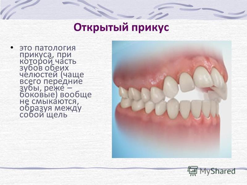 Открытый прикус это патология прикуса, при которой часть зубов обеих челюстей (чаще всего передние зубы, реже – боковые) вообще не смыкаются, образуя между собой щель