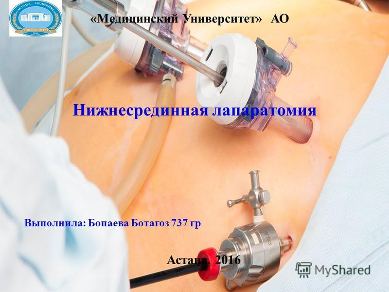 Нижнесрединная лапаротомия Выполнила: Бопаева Ботагоз 737 гр «Медицинский Университет» АО Астана, 2016