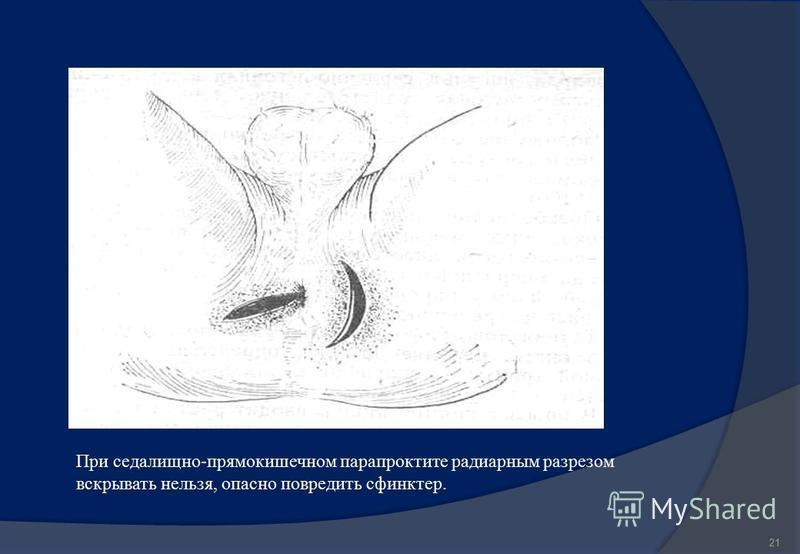 21 При седалищно-прямокишечном парапроктите радиарным разрезом вскрывать нельзя, опасно повредить сфинктер.