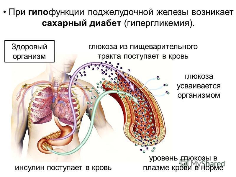 При гипофункции поджелудочной железы возникает сахарный диабет (гипергликемия). глюкоза из пищеварительного тракта поступает в кровь инсулин поступает в кровь глюкоза усваивается организмом уровень глюкозы в плазме крови в норме Здоровый организм