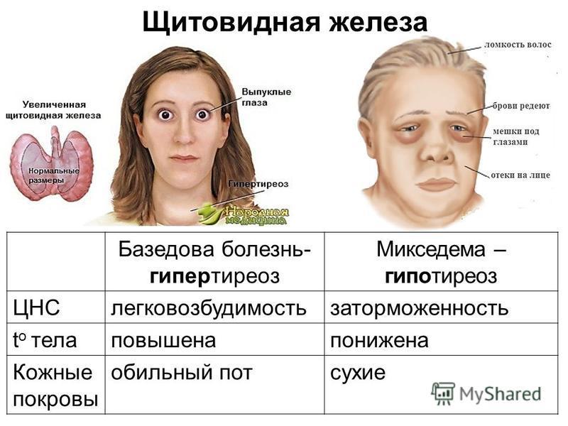 Щитовидная железа Базедова болезнь- гипертиреоз Микседема – гипотиреоз ЦНСлегковозбудимостьзаторможенность t o тела повышена понижена Кожные покровы обильный пот сухие