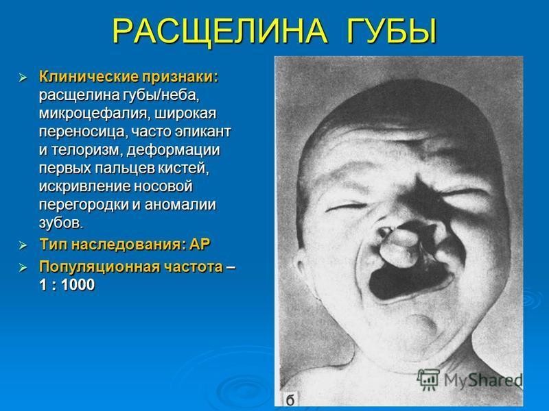 РАСЩЕЛИНА ГУБЫ Клинические признаки: расщелина губы/неба, микроцефалия, широкая переносица, часто эпикант и тейлоризм, деформации первых пальцев кистей, искривление носовой перегородки и аномалии зубов. Клинические признаки: расщелина губы/неба, микр