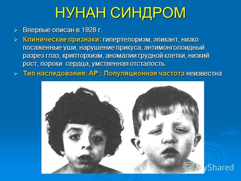 НУНАН СИНДРОМ Впервые описан в 1928 г. Впервые описан в 1928 г. Клинические признаки: гипертейлоризм, эпикант, низко посаженные уши, нарушение прикуса, антимонголоидный разрез глаз, крипторхизм, аномалии грудной клетки, низкий рост, пороки сердца, ум