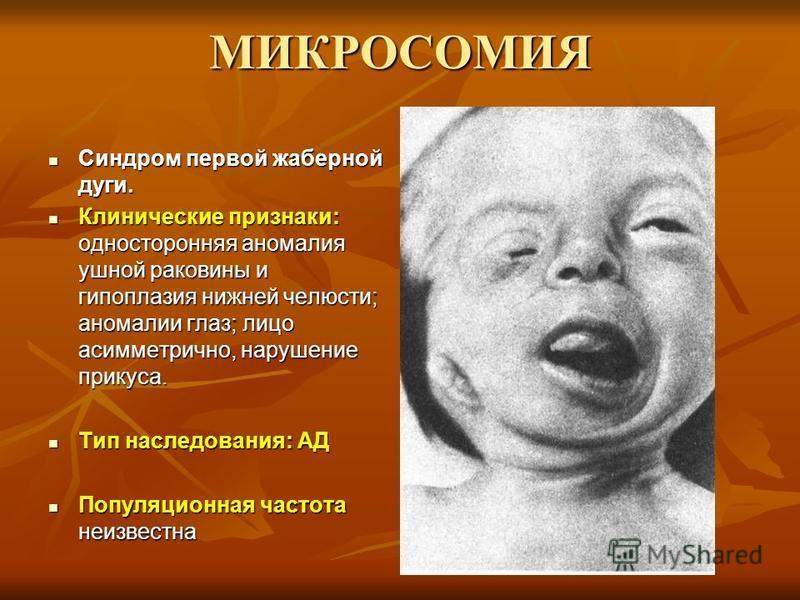 МИКРОСОМИЯ Синдром первой жаберной дуги. Синдром первой жаберной дуги. Клинические признаки: односторонняя аномалия ушной раковины и гипоплазия нижней челюсти; аномалии глаз; лицо асимметрично, нарушение прикуса. Клинические признаки: односторонняя а