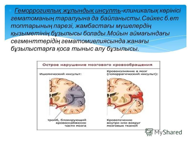 Геморрогиялық жұлындық инсульт-клиникалық көрінісі гематоманың таралуына да байланысты.Сәйкес б.ет топтарының парезі, жамбастағы мүшелердің қызыметінің бұзылысы болады.Мойын аймағындағы сегменттерідің гематомиелиясында жанағы бұзылыстарға қоса тыныс