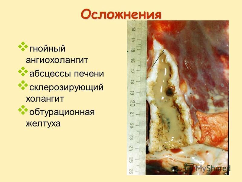 Осложнения гнойный ангиохолангит абсцессы печени склерозирующий холангит обтурационная желтуха