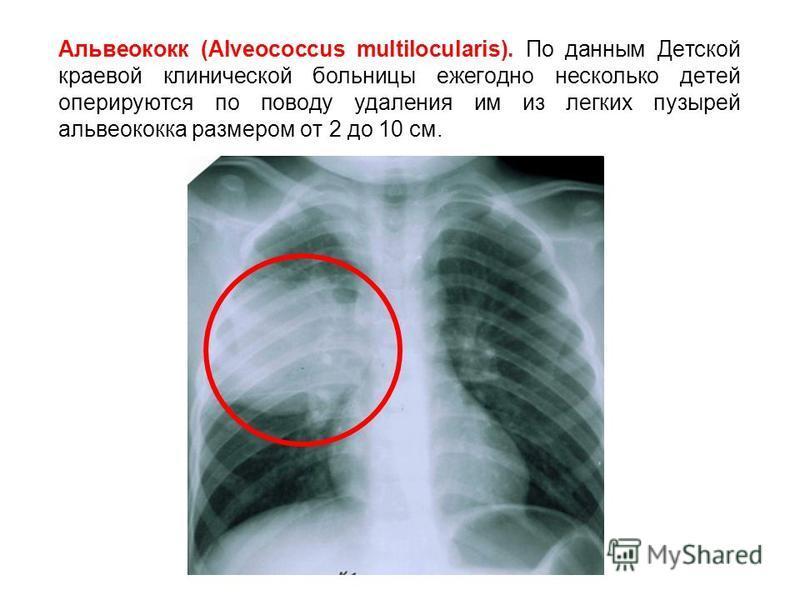 Альвеококк (Alveococcus multilocularis). По данным Детской краевой клинической больницы ежегодно несколько детей оперируются по поводу удаления им из легких пузырей альвеококка размером от 2 до 10 см.