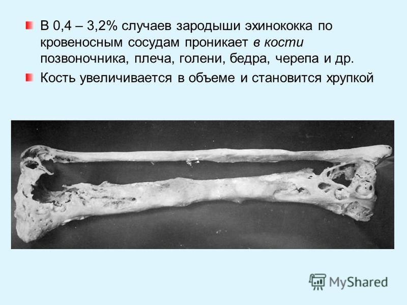 В 0,4 – 3,2% случаев зародыши эхинококка по кровеносным сосудам проникает в кости позвоночника, плеча, голени, бедра, черепа и др. Кость увеличивается в объеме и становится хрупкой