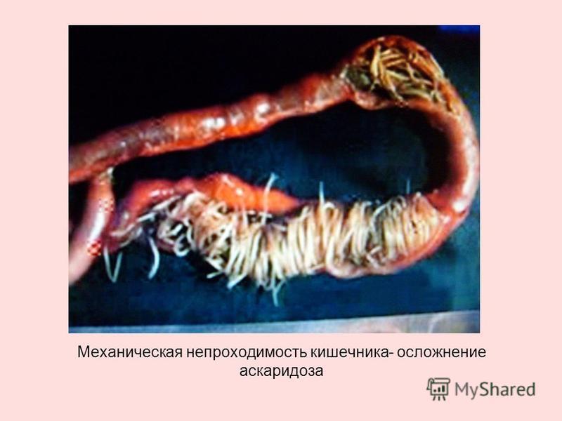 Механическая непроходимость кишечника- осложнение аскаридоза