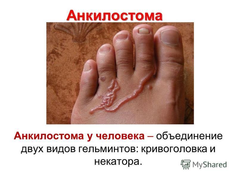 Анкилостома Анкилостома у человека – объединение двух видов гельминтов: кривоголовка и некатора.