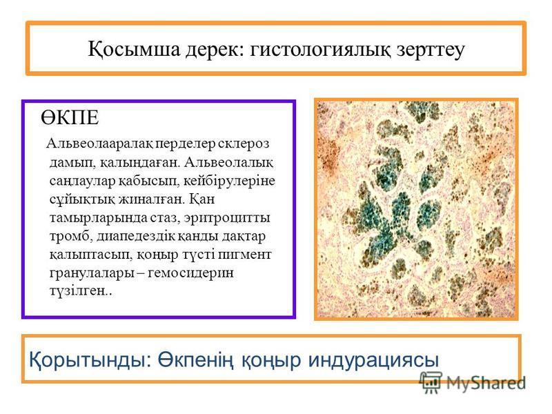 Қосымша дерек : гистологиялық зерттеу ӨКПЕ Альвеолааралақ перделер склероз дамып, қалыңдаған. Альвеолалық саңлаулар қабысып, кейбірулеріне сұйықтық жиналған. Қан тамырларында стаз, эритроцитты тромб, диапедездік қанды дақтар қалыптасып, қоңыр түсті п