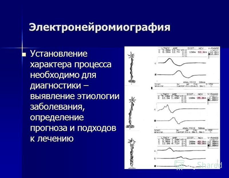 Электронейромиография Установление характера процесса необходимо для диагностики – выявление этиологии заболевания, определение прогноза и подходов к лечению Установление характера процесса необходимо для диагностики – выявление этиологии заболевания