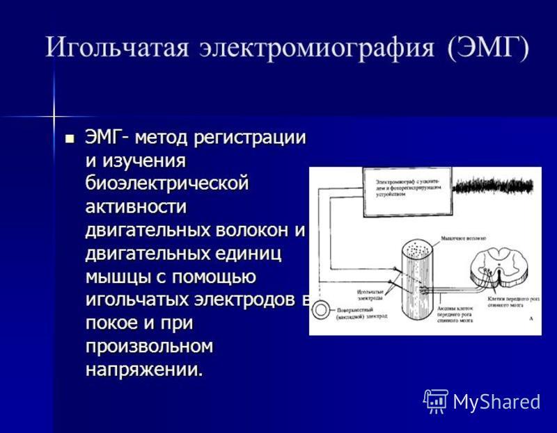 Игольчатая электромиография (ЭМГ) ЭМГ- метод регистрации и изучения биоэлектрической активности двигательных волокон и двигательных единиц мышцы с помощью игольчатых электродов в покое и при произвольном напряжении. ЭМГ- метод регистрации и изучения