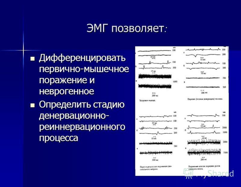 ЭМГ позволяет : Дифференцировать первично-мышечное поражение и неврогенное Дифференцировать первично-мышечное поражение и неврогенное Определить стадию денервационно- реиннервационного процесса Определить стадию денервационно- реиннервационного проце