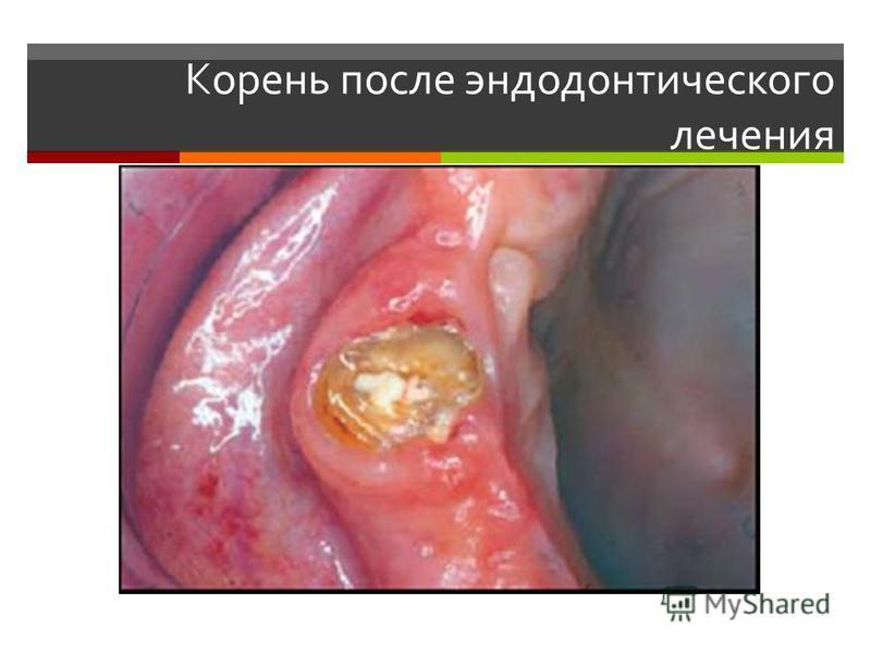 Корень после эндодонтического лечения