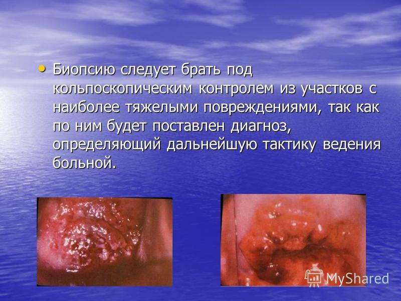Биопсию следует брать под кольпоскопическим контролем из участков с наиболее тяжелыми повреждениями, так как по ним будет поставлен диагноз, определяющий дальнейшую тактику ведения больной. Биопсию следует брать под кольпоскопическим контролем из уча
