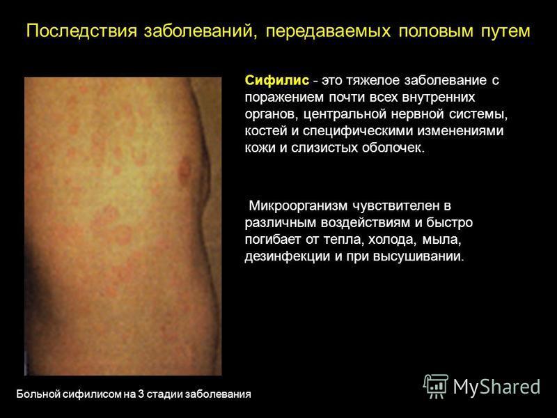 Сифилис - это тяжелое заболевание с поражением почти всех внутренних органов, центральной нервной системы, костей и специфическими изменениями кожи и слизистых оболочек. Микроорганизм чувствителен в различным воздействиям и быстро погибает от тепла,