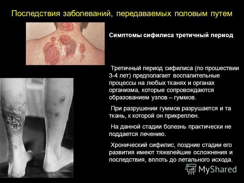 Симптомы сифилиса третичный период Третичный период сифилиса (по прошествии 3-4 лет) предполагает воспалительные процессы на любых тканях и органах организма, которые сопровождаются образованием узлов – гумов. При разрушении гумов разрушается и та тк