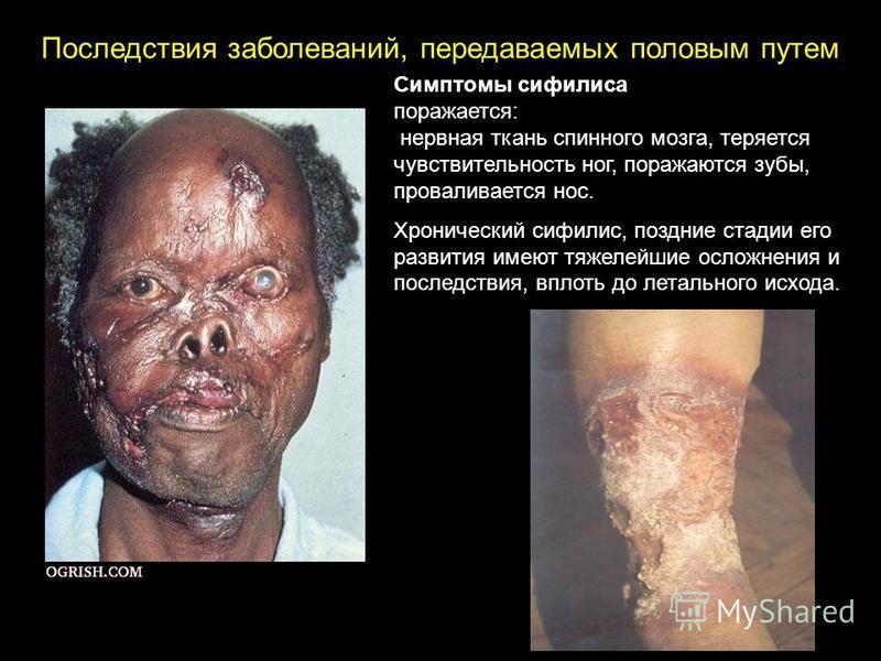 Последствия заболеваний, передаваемых половым путем Симптомы сифилиса поражается: нервная ткань спинного мозга, теряется чувствительность ног, поражаются зубы, проваливается нос. Хронический сифилис, поздние стадии его развития имеют тяжелейшие ослож
