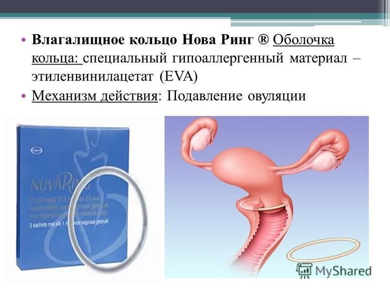 Влагалищное кольцо Нова Ринг ® Оболочка кольца: специальный гипоаллергенный материал – этиленвинилацетат (EVA) Механизм действия: Подавление овуляции