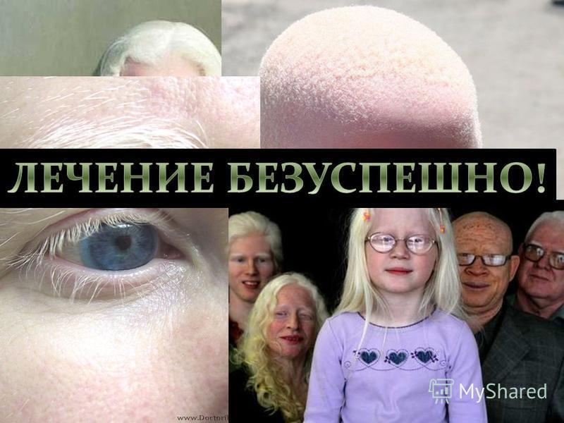 Альбинизм- нарушение аминокислотного метаполизма. Врождённое отсутствие пигмента кожи, волос, радужной и пигментной ополочек глаза. Причиной альбинизма является отсутствие (или блокада) фермента тирозиназы, необходимой для нормального синтеза меланин