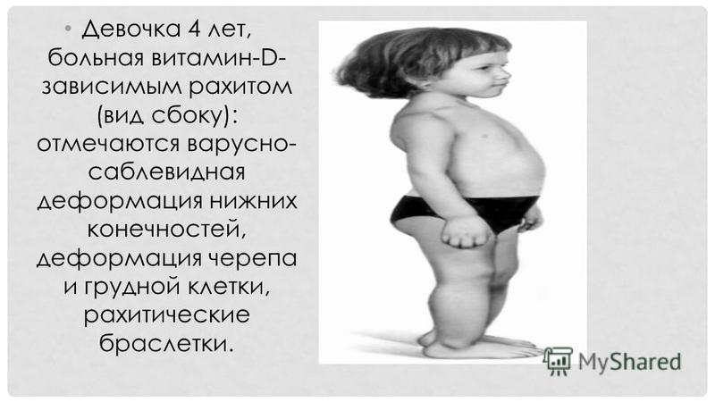 Девочка 4 лет, больная витамин-D- зависимым рахитом (вид сбоку): отмечаются варусной- саблевидная деформация нижних конечностей, деформация черепа и грудной клетки, рахитические браслетки.