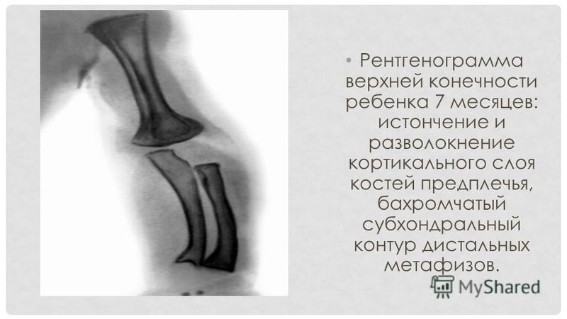 Рентгенограмма верхней конечности ребенка 7 месяцев: истончение и разволокнение кортикального слоя костей предплечья, бахромчатый субхондральный контур дистальных метафизов.