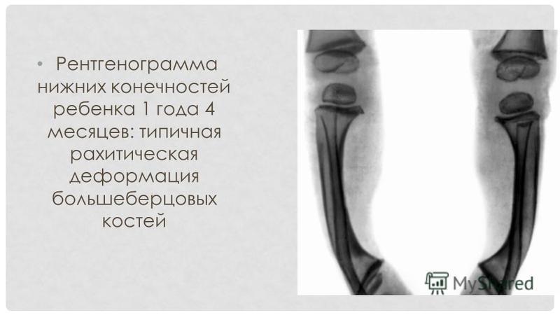 Рентгенограмма нижних конечностей ребенка 1 года 4 месяцев: типичная рахитическая деформация большеберцовых костей