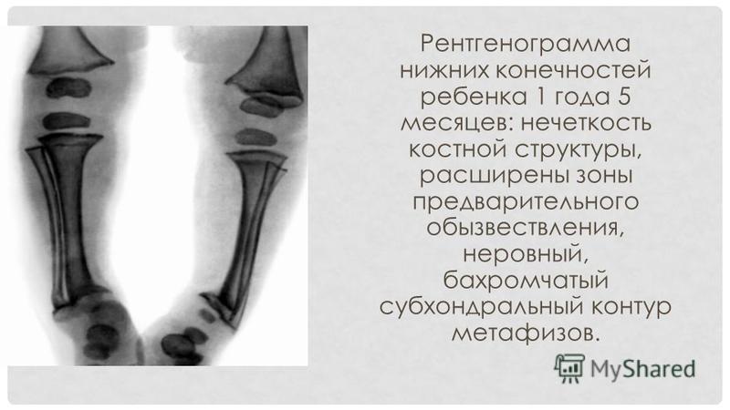 Рентгенограмма нижних конечностей ребенка 1 года 5 месяцев: нечеткость костной структуры, расширены зоны предварительного обызвествления, неровный, бахромчатый субхондральный контур метафизов.
