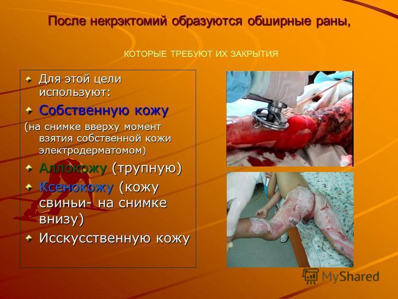 После некрэктомии образуются обширные раны, После некрэктомии образуются обширные раны, КОТОРЫЕ ТРЕБУЮТ ИХ ЗАКРЫТИЯ Для этой цели используют: Собственную кожу (на снимке вверху момент взятия собственной кожи электродерматомом ) Аллокожу (трупную) Ксе
