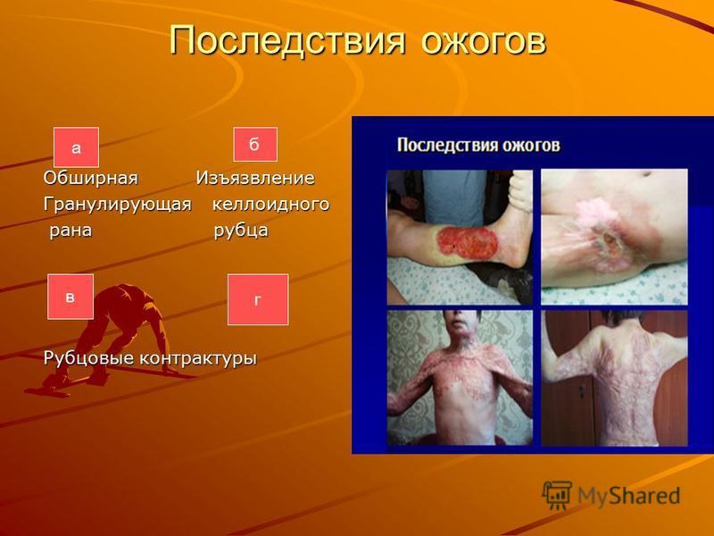 Последствия ожогов Обширная Изъязвление Гранулирующая келлоидного рана рубца рана рубца Рубцовые контрактуры а б в г
