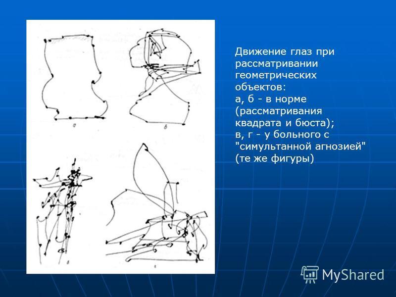 Движение глаз при рассматривании геометрических объектов: а, б - в норме (рассматривания квадрата и бюста); в, г - у больного с симультанной агнозией (те же фигуры)