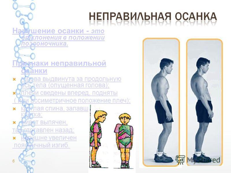 Нарушение осанки - это отклонения в положении позвоночника. Признаки неправильной осанки голова выдвинута за продольную ось тела (опущенная голова); голова выдвинута за продольную ось тела (опущенная голова); плечи сведены вперед, подняты ( или ассим