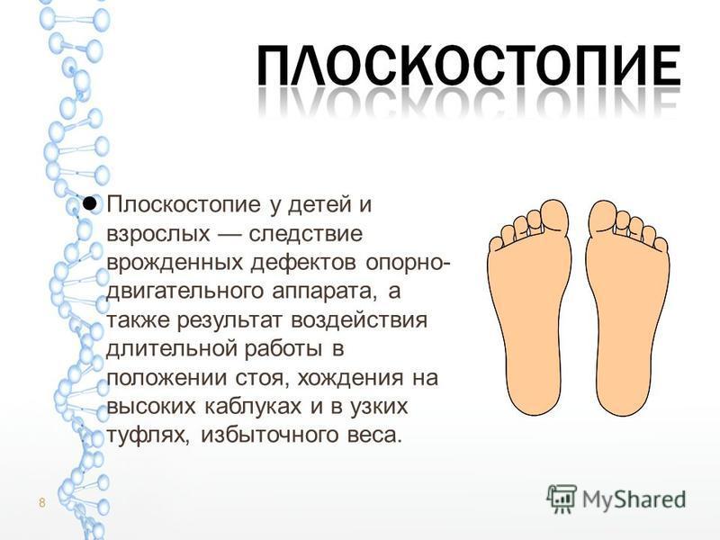 Плоскостопие у детей и взрослых следствие врожденных дефектов опорно- двигательного аппарата, а также результат воздействия длительной работы в положении стоя, хождения на высоких каблуках и в узких туфлях, избыточного веса. 8