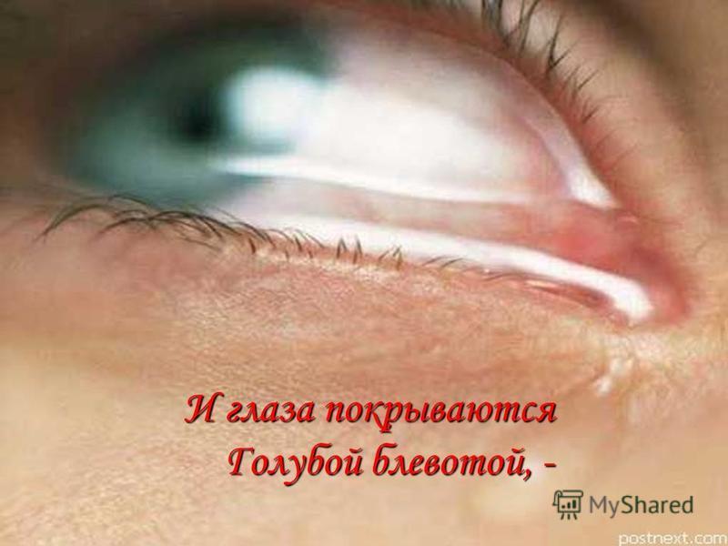 И глаза покрываются Голубой блевотой, - И глаза покрываются Голубой блевотой, -