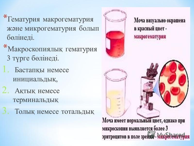 * Гематурия макрогематурия және микрогематурия болып бөлінеді. * Макроскопиялық гематурия 3 түрге бөлінеді. 1. Бастапқы немесе инициальдық, 2. Ақтық немесе терминальдық 3. Толық немесе тотальдық