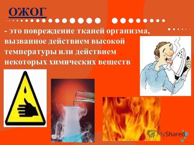 ОЖОГ - это повреждение тканей организма, вызванное действием высокой температуры или действием некоторых химических веществ