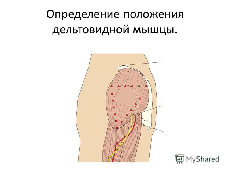 Определение положения дельтовидной мышцы.