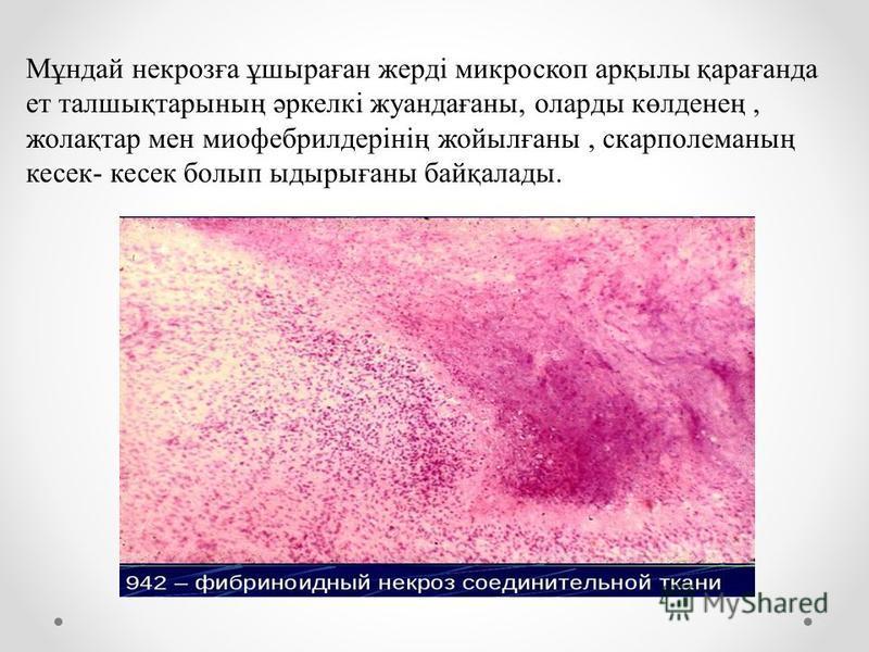Мұндай некрозға ұшыраған жерді микроскоп арқылы қарағанда ет талшықтарының әркелкі жуандағаны, оларды көлденең, жолақтар мен миофебрилдерінің жойылғаны, скарполеманың кесек- кесек болып ыдырығаны байқалады.