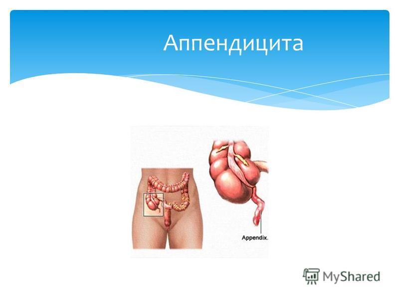 Аппендицита