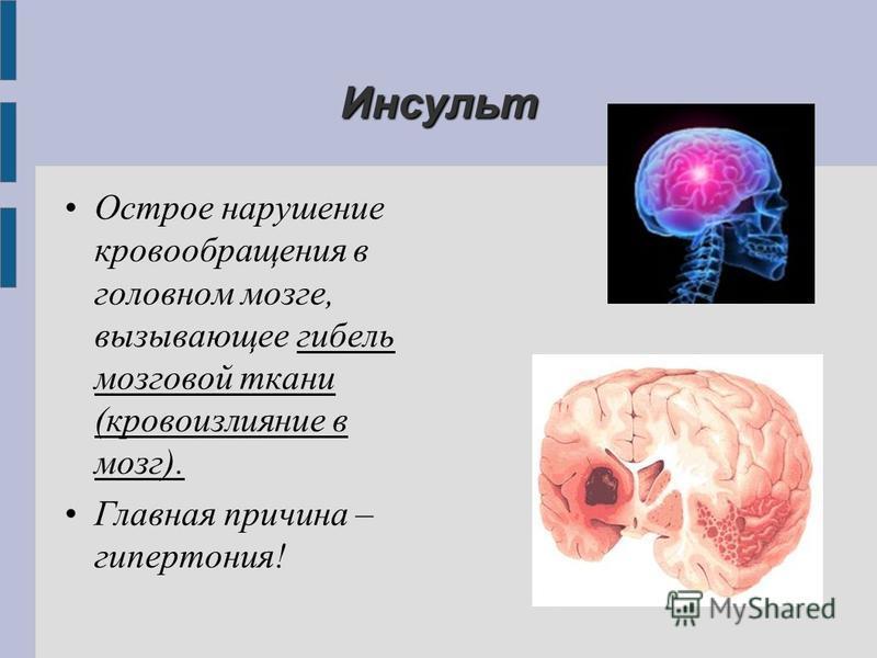 Инсульт Острое нарушение кровообращения в головном мозге, вызывающее гибель мозговой ткани (кровоизлияние в мозг). Главная причина – гипертония!